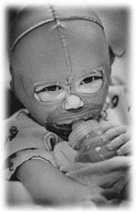 Baby with Burn Mask